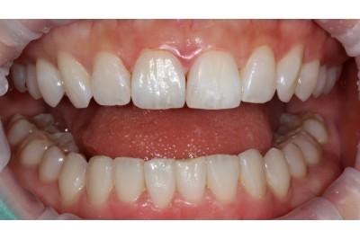 치아사이충치-레진