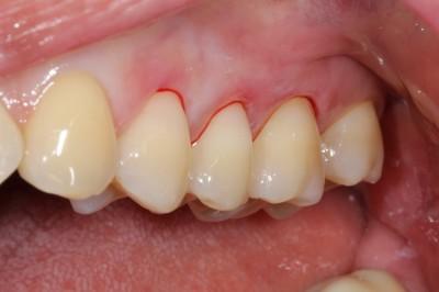 치아마모증 - 레진